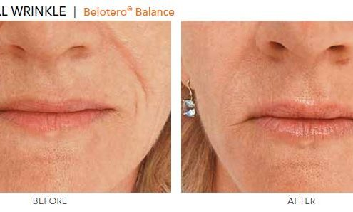Nasolabial Wrinkle - Belotero Balance