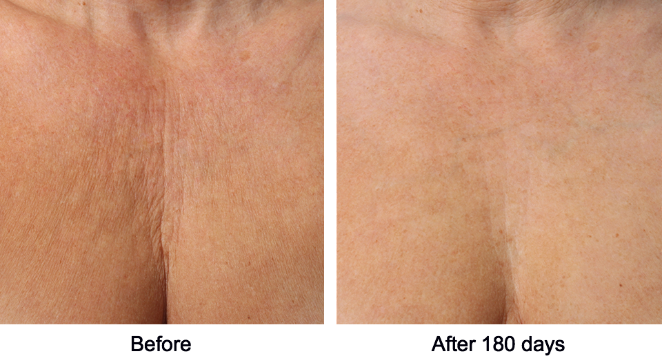 Ultherapy - Decollete chest treatment before and after photo