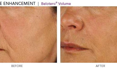 Cheekbone Enhancement - Belotero Volume