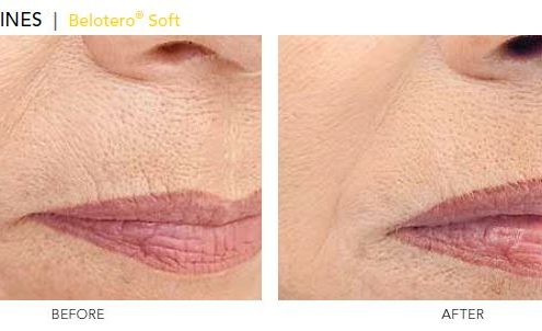 Perioral Lines - Belotero Soft