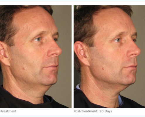 Ultherapy - before and after photo