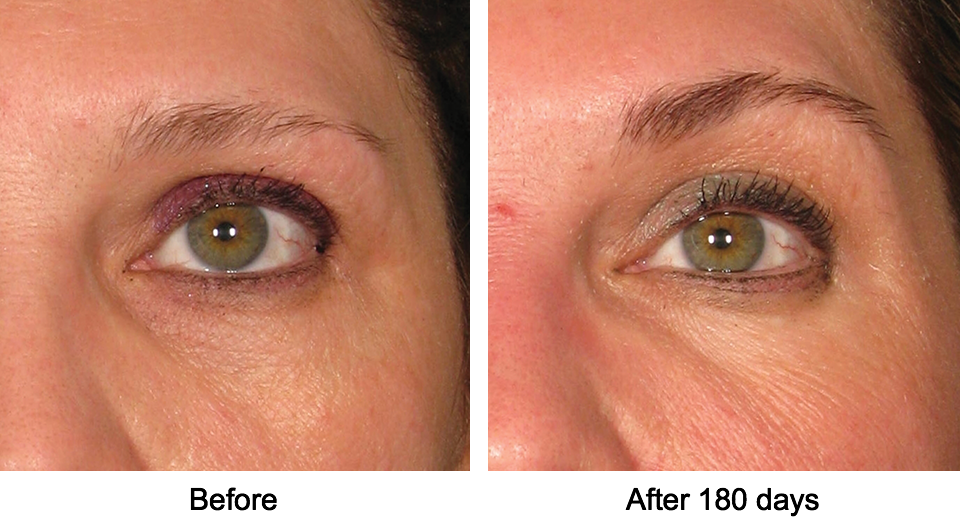 Ultherapy - Non-invasive brow lift before and after photo