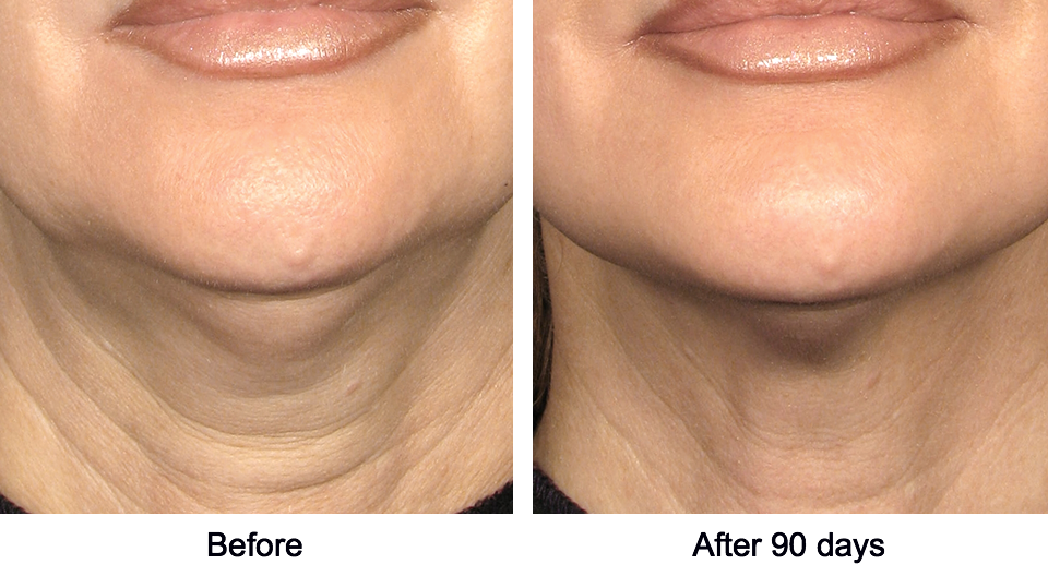 Ultherapy - Non-invasive neck and chin lift before and after photo