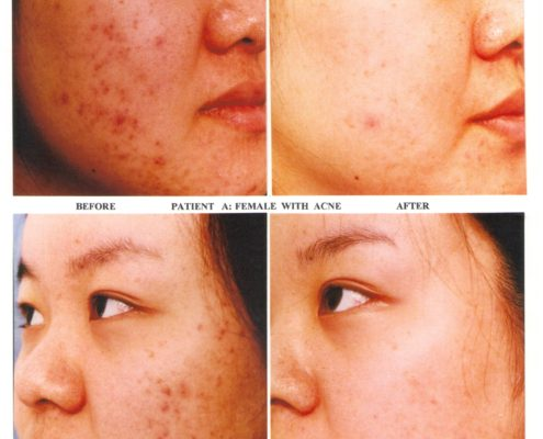 Biophora - Salicylic Peel - Acne - Before and after photo