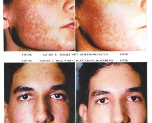 Biophora - Salicylic Peel - hyperpigmentering og akne - before and after photo